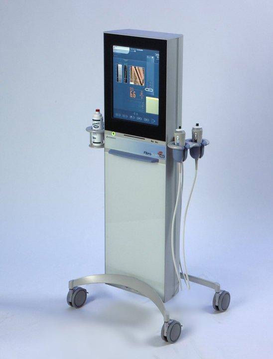 FibroScan Machine at Reddy Cardiac Wellness & Diabetes Reversal Center